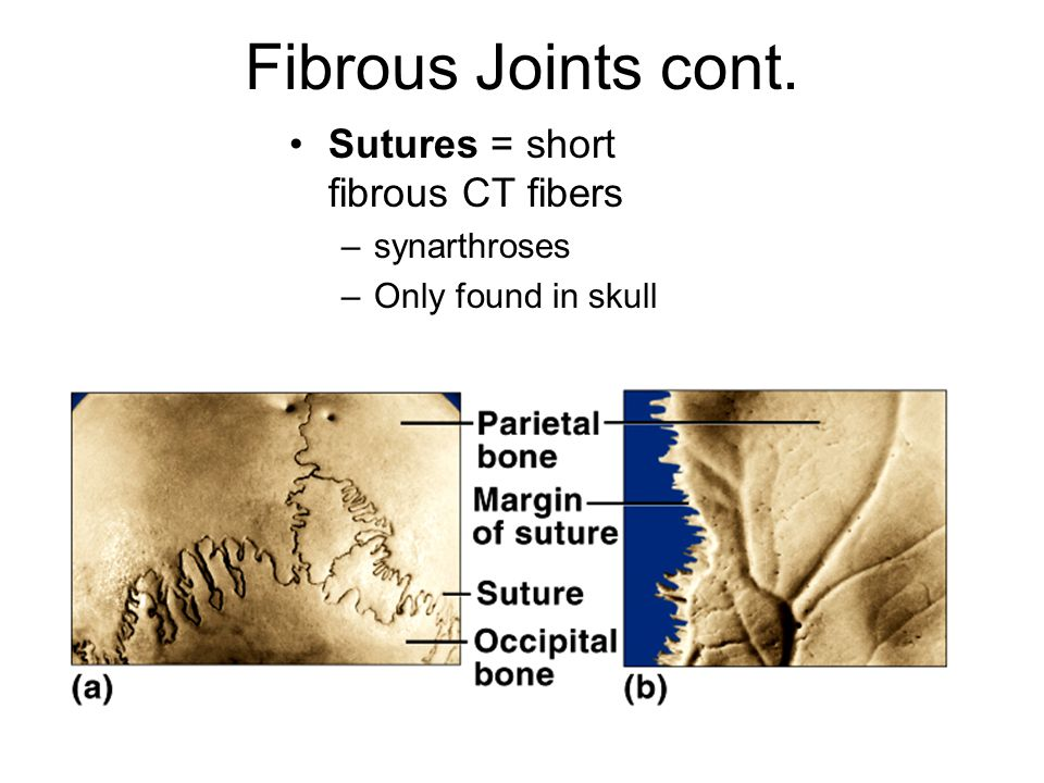 Fibrous Joints cont. Sutures = short fibrous CT fibers synarthroses
