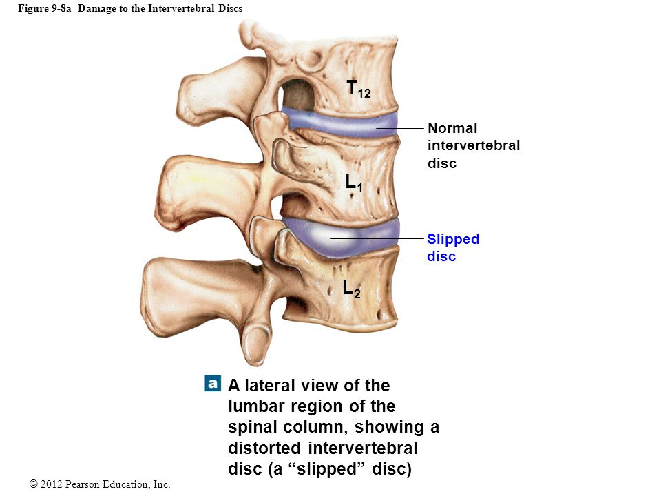 Figure 9-8a Damage to the Intervertebral Discs