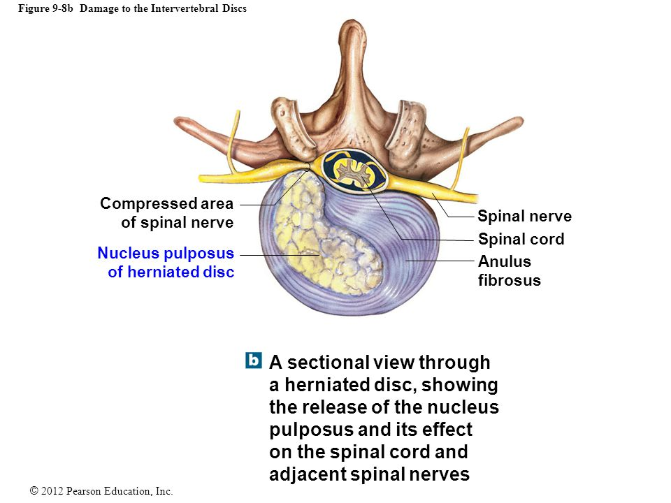 Figure 9-8b Damage to the Intervertebral Discs
