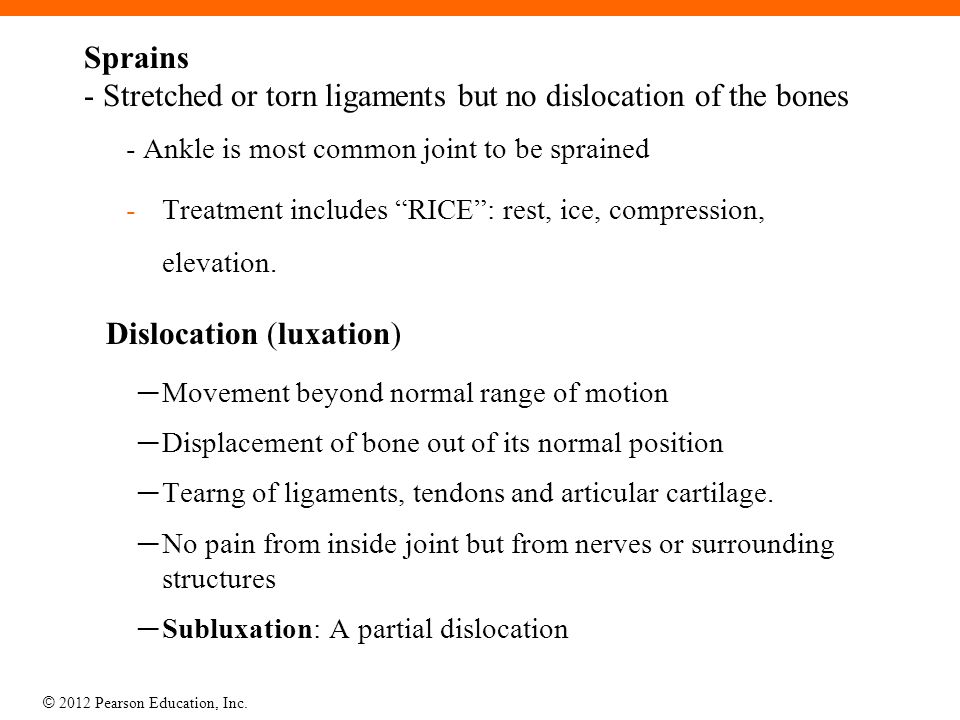 Sprains - Stretched or torn ligaments but no dislocation of the bones