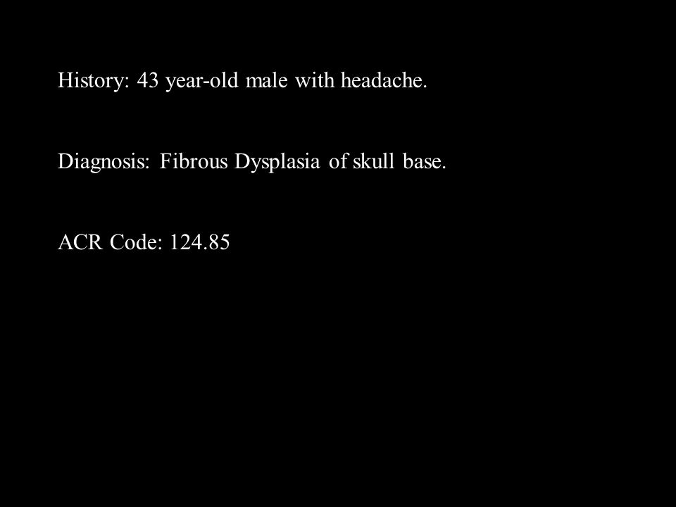 History: 43 year-old male with headache.