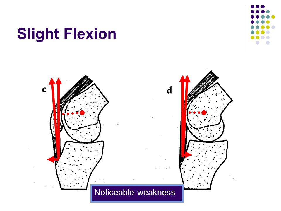 Slight Flexion Noticeable weakness