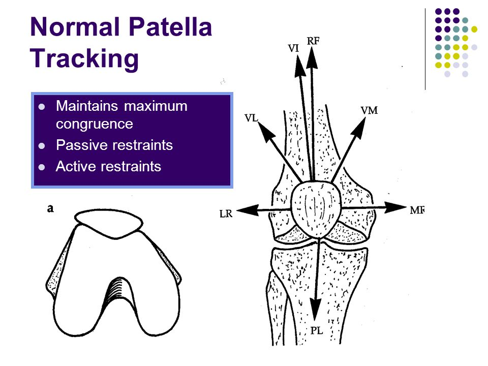 Normal Patella Tracking