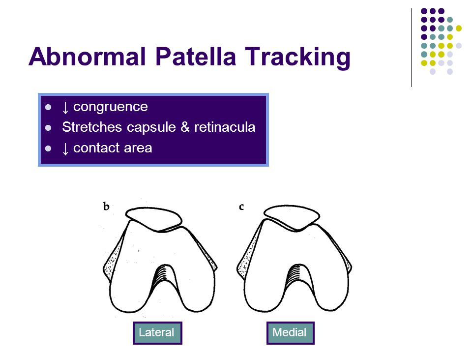 Abnormal Patella Tracking