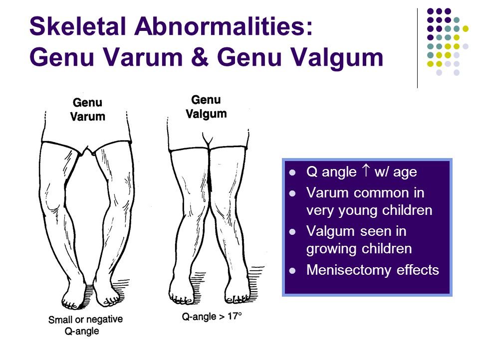 Skeletal Abnormalities: Genu Varum & Genu Valgum