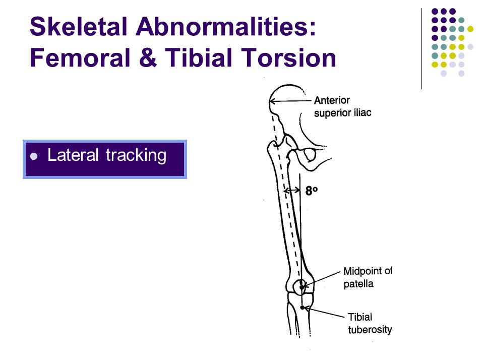Skeletal Abnormalities: Femoral & Tibial Torsion