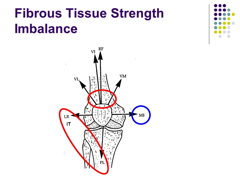 Fibrous Tissue Strength Imbalance