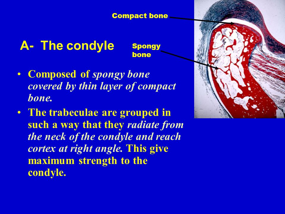 Compact bone A- The condyle. Spongy bone. Composed of spongy bone covered by thin layer of compact bone.
