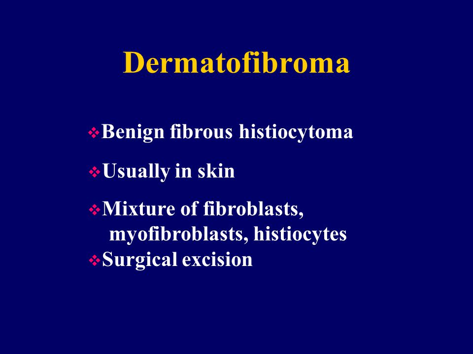 Dermatofibroma Benign fibrous histiocytoma Usually in skin
