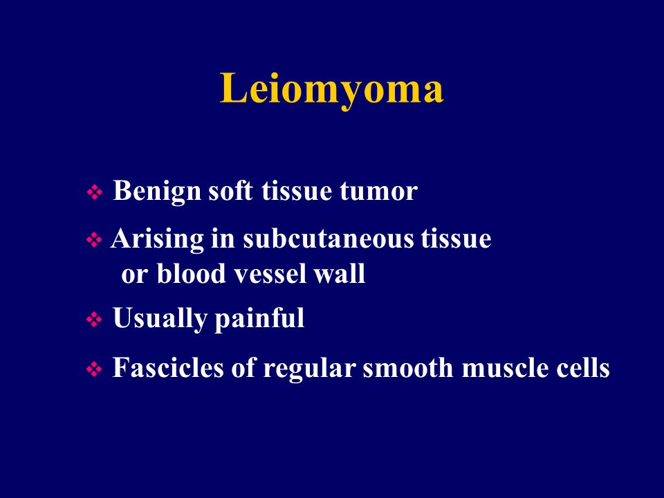 Leiomyoma Benign soft tissue tumor Arising in subcutaneous tissue