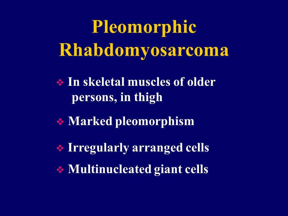 Pleomorphic Rhabdomyosarcoma