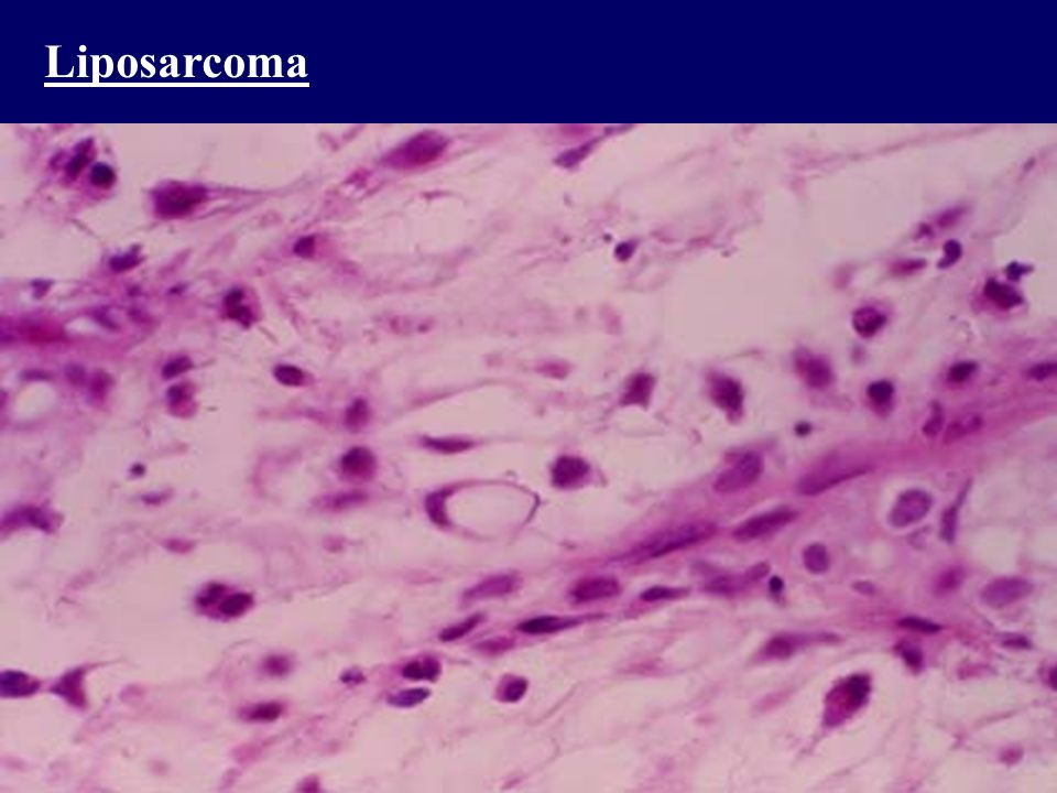 Liposarcoma