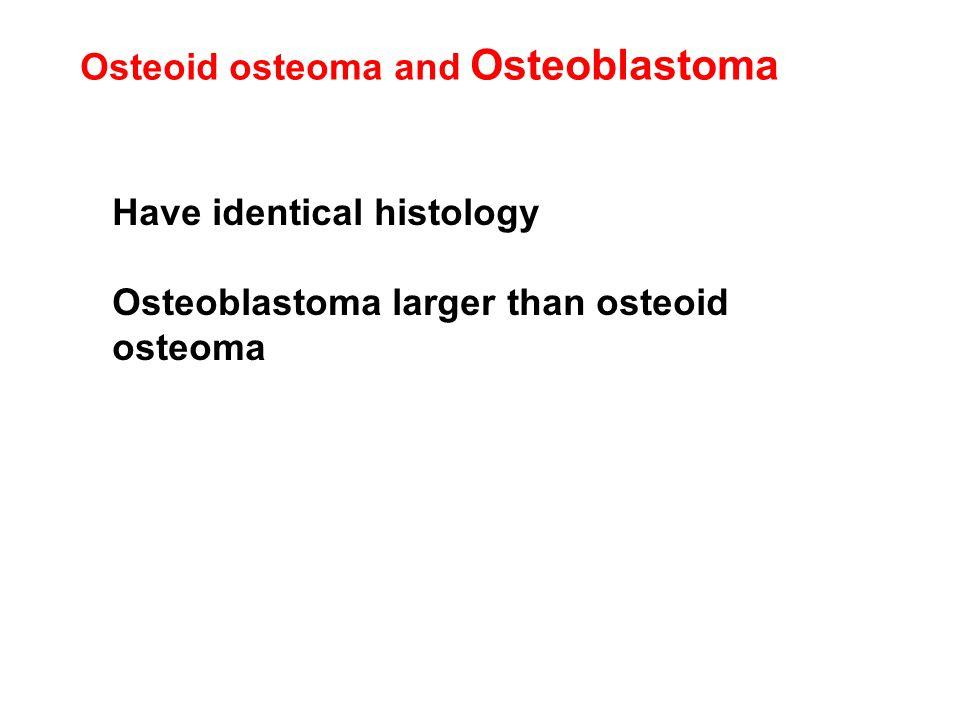 Osteoid osteoma and Osteoblastoma