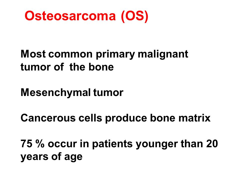Osteosarcoma (OS) Most common primary malignant tumor of the bone