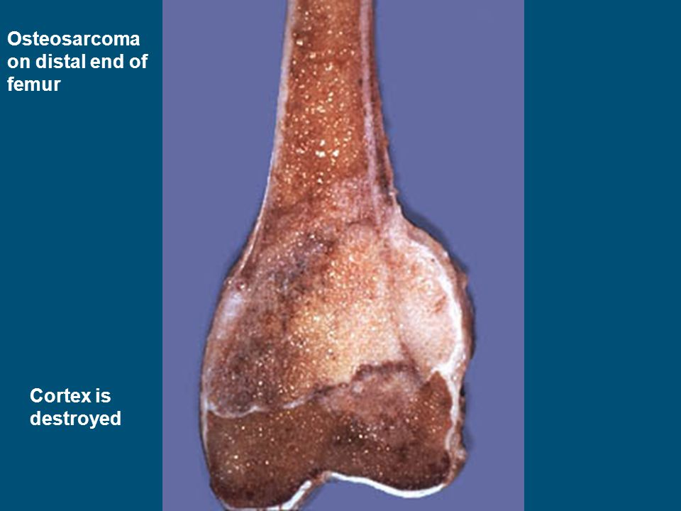 Osteosarcoma on distal end of femur