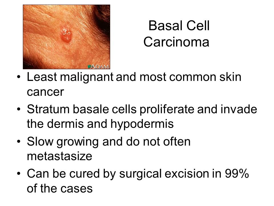 Basal Cell Carcinoma Least malignant and most common skin cancer