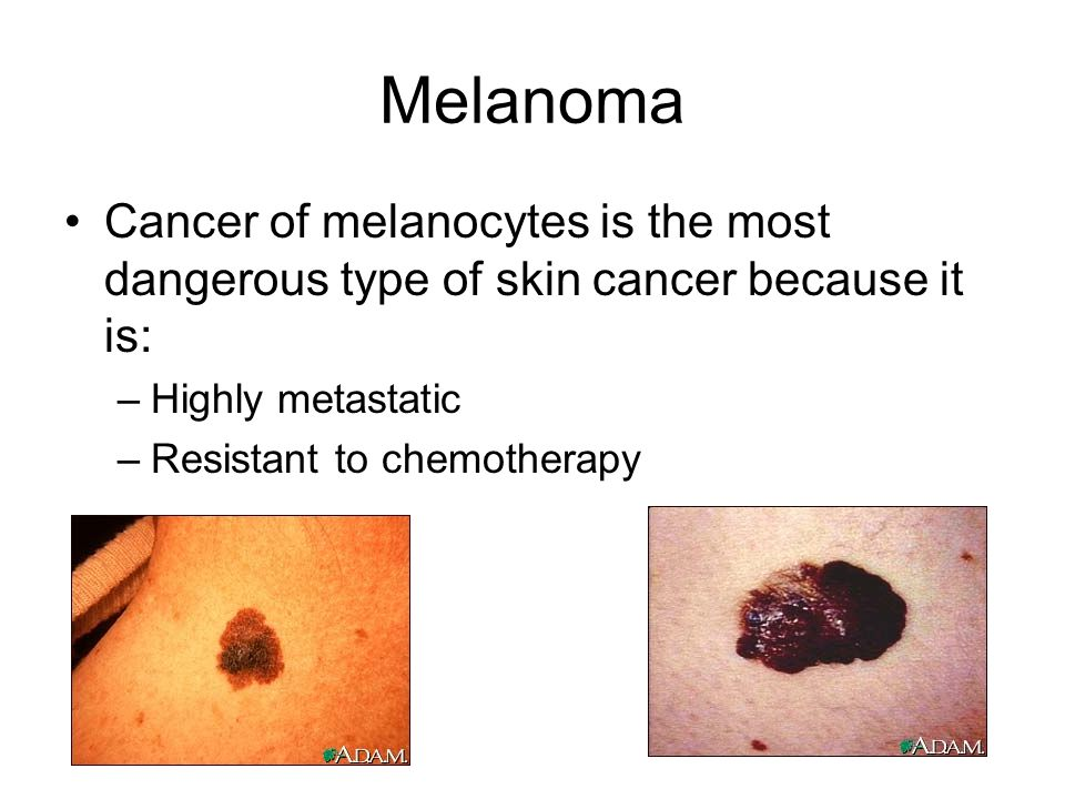 Melanoma Cancer of melanocytes is the most dangerous type of skin cancer because it is: Highly metastatic.