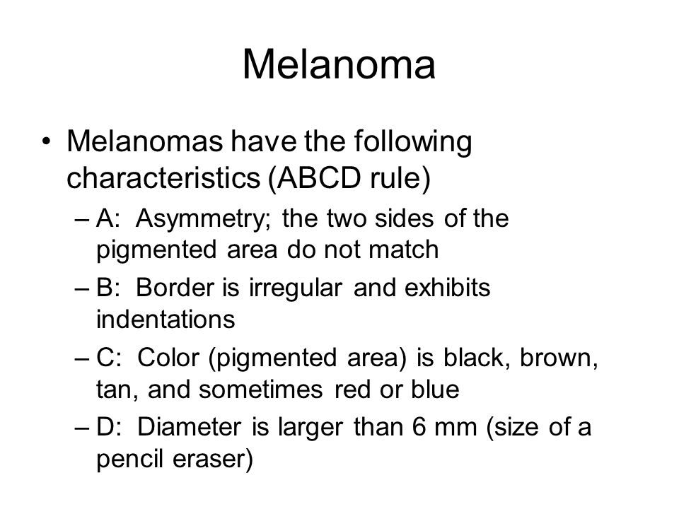 Melanoma Melanomas have the following characteristics (ABCD rule)