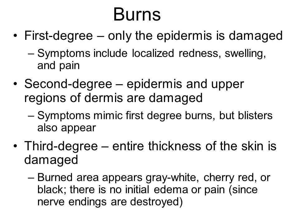 Burns First-degree – only the epidermis is damaged