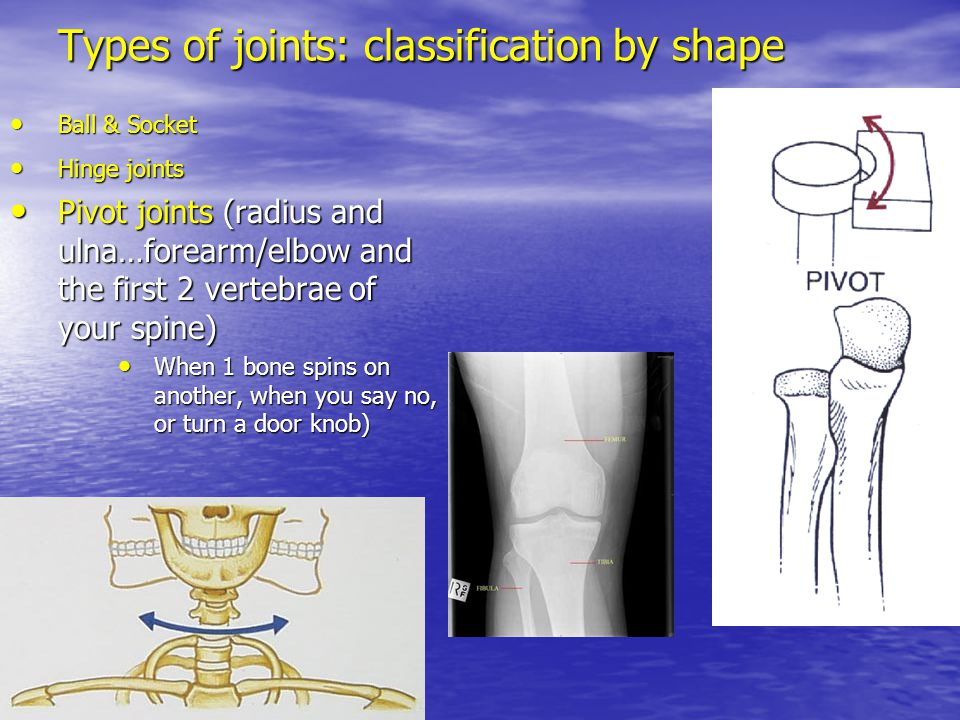 Types of joints: classification by shape