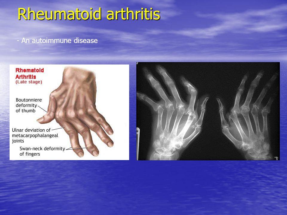 Rheumatoid arthritis - An autoimmune disease