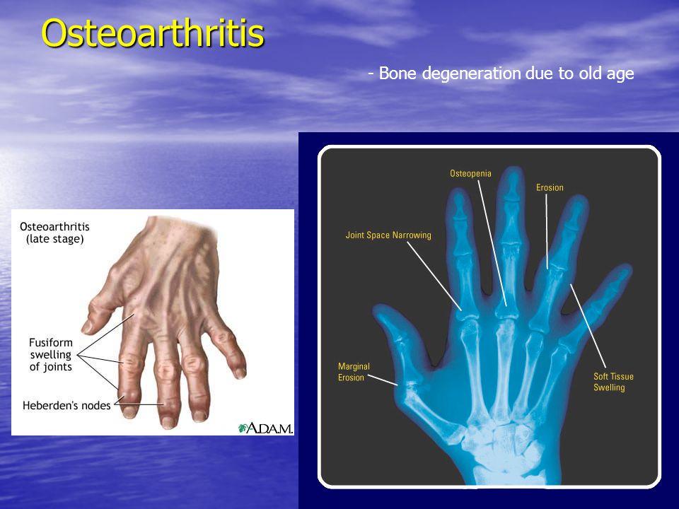 Osteoarthritis - Bone degeneration due to old age