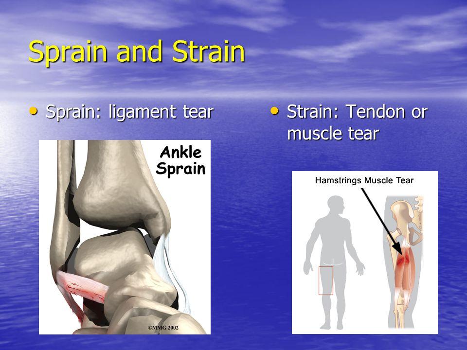Sprain and Strain Sprain: ligament tear Strain: Tendon or muscle tear