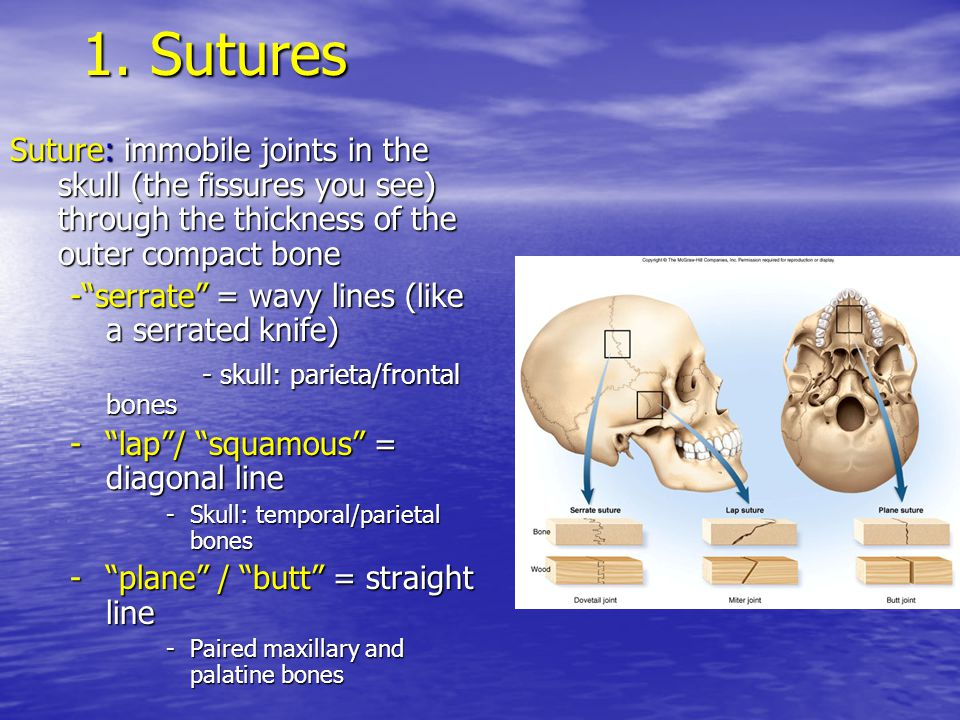 1. Sutures Suture: immobile joints in the skull (the fissures you see) through the thickness of the outer compact bone.
