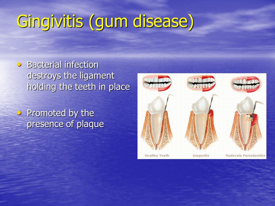 Gingivitis (gum disease)