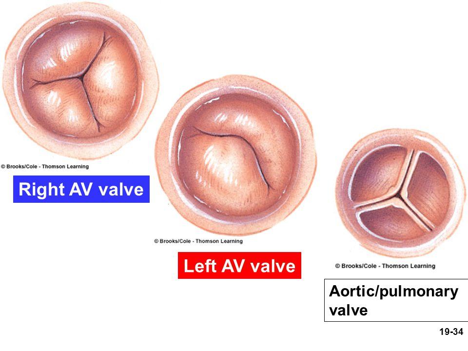 Right AV valve Left AV valve