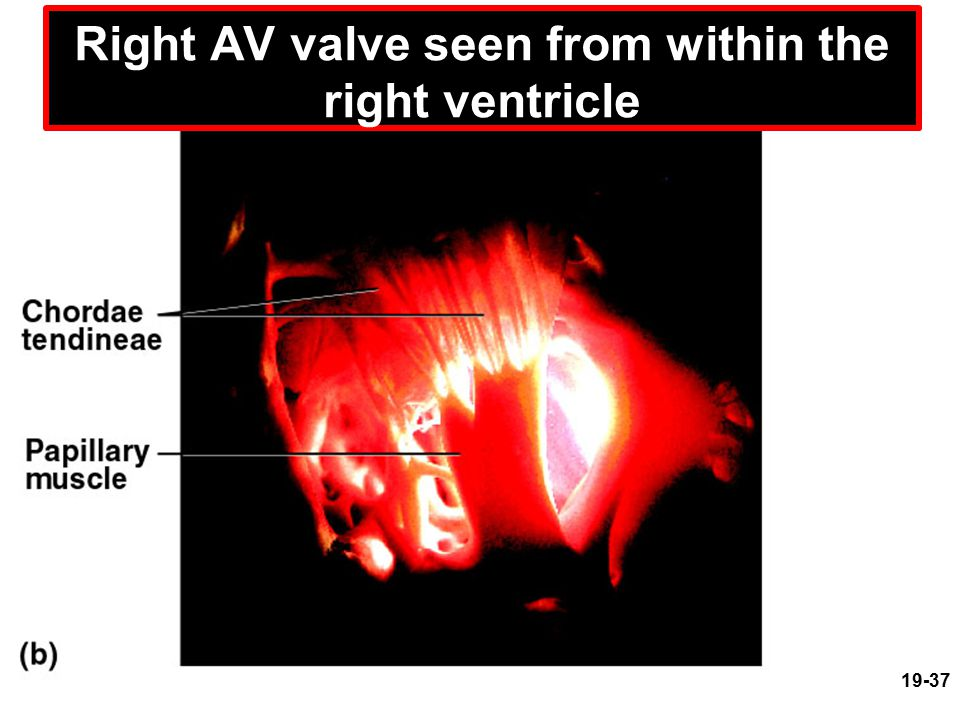 Right AV valve seen from within the right ventricle