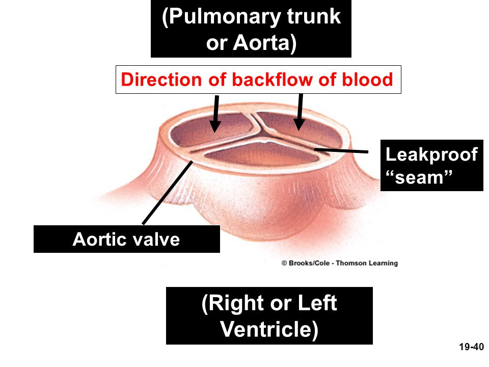 (Pulmonary trunk or Aorta) (Right or Left Ventricle)