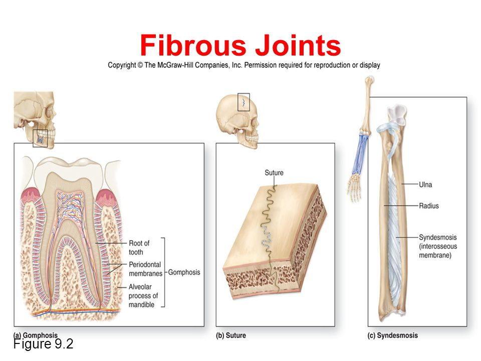 Fibrous Joints Figure 9.2