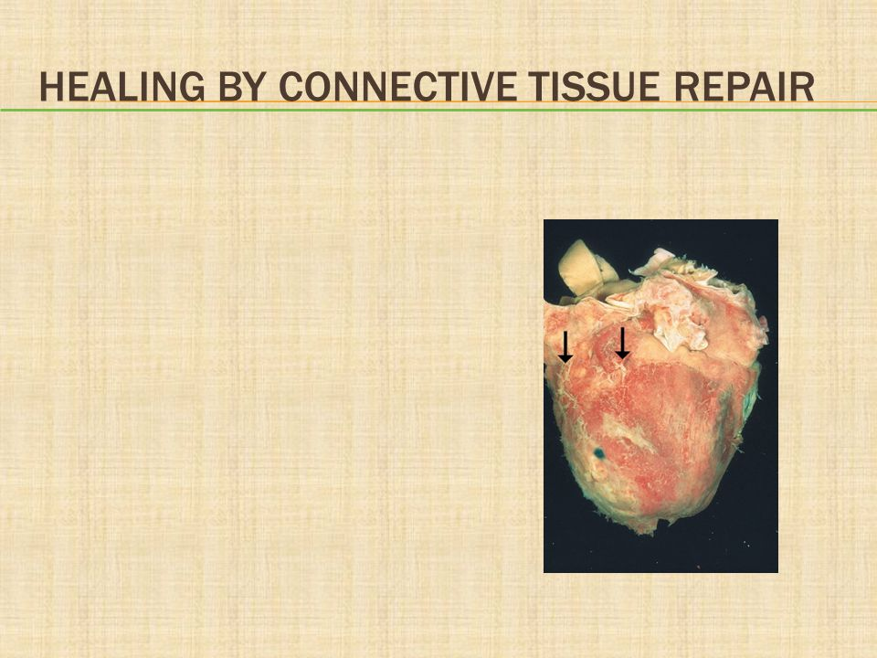 Healing by Connective Tissue Repair