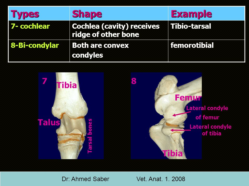 Lateral condyle of femur Lateral condyle of tibia