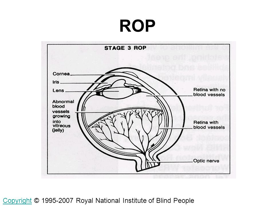 ROP Copyright © 1995-2007 Royal National Institute of Blind People