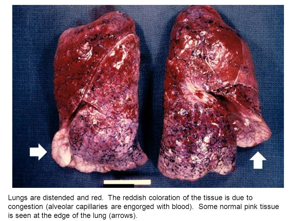 Lungs are distended and red