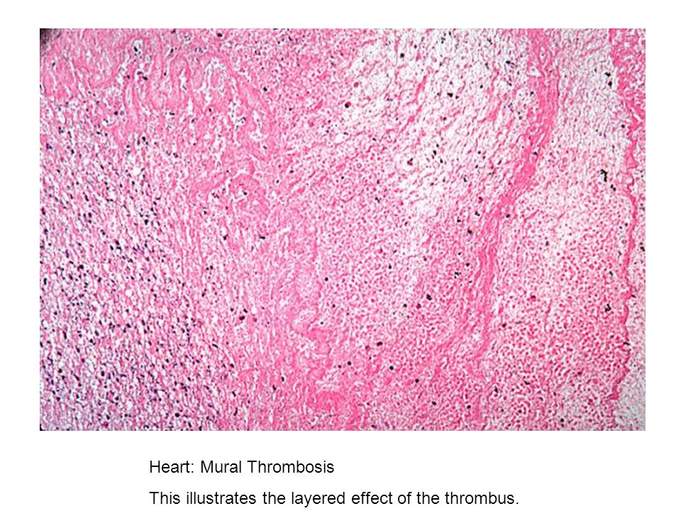 Lungs are distended and red ppt download for Mural thrombosis
