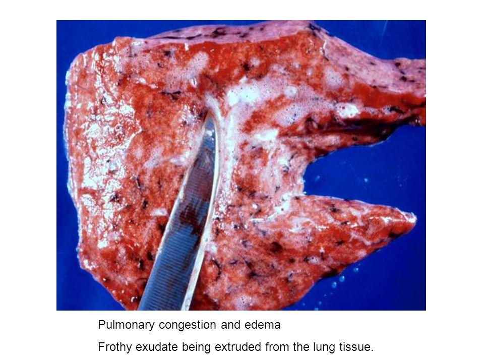 Pulmonary congestion and edema