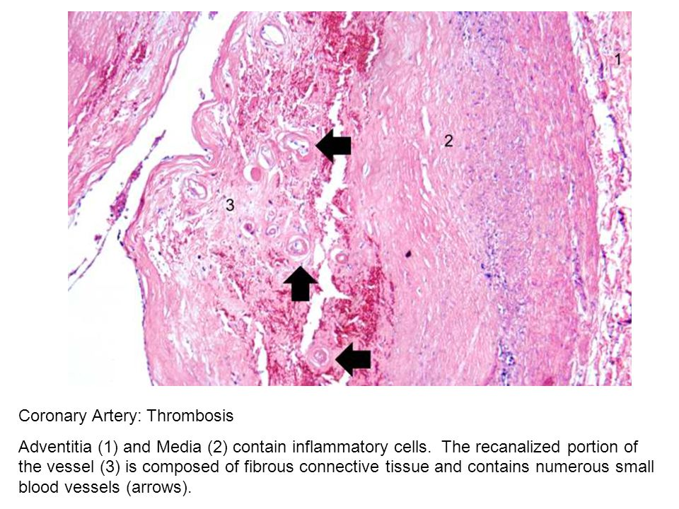 Coronary Artery: Thrombosis