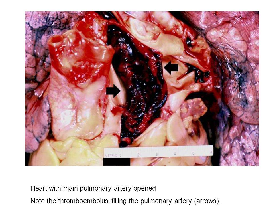 Heart with main pulmonary artery opened