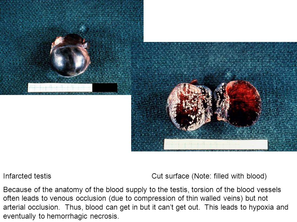 Infarcted testis Cut surface (Note: filled with blood)