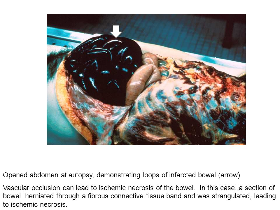 Opened abdomen at autopsy, demonstrating loops of infarcted bowel (arrow)