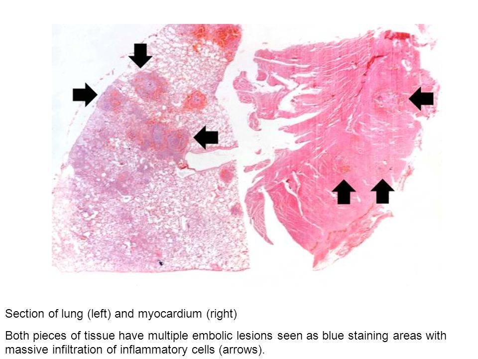 Section of lung (left) and myocardium (right)