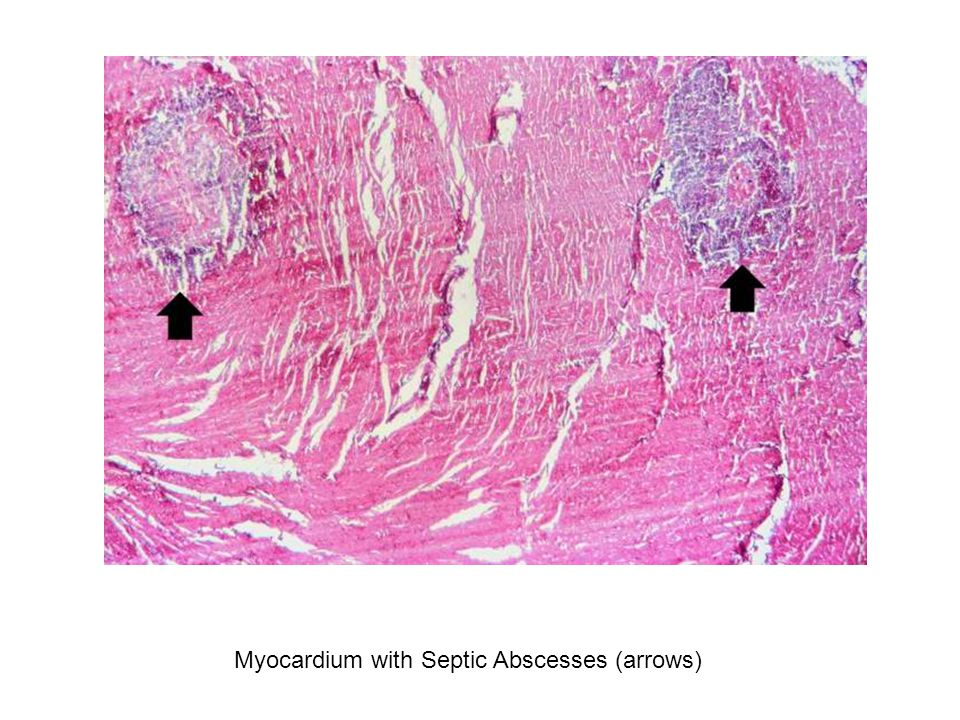 Myocardium with Septic Abscesses (arrows)