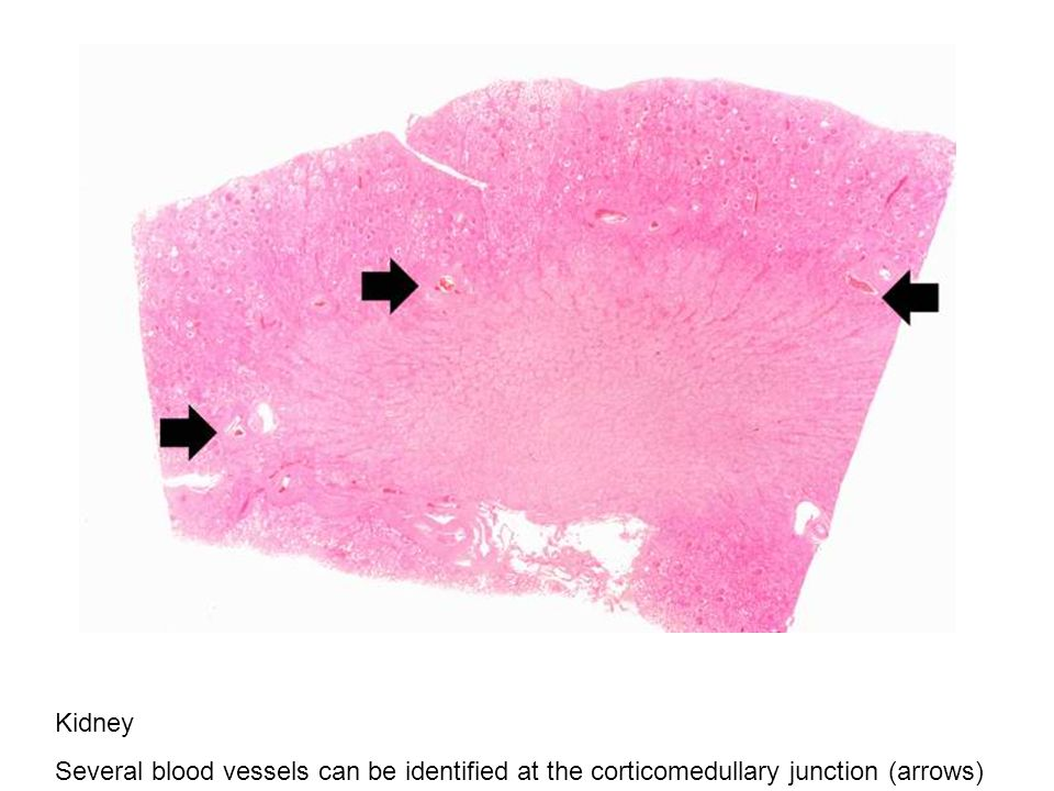 Kidney Several blood vessels can be identified at the corticomedullary junction (arrows)