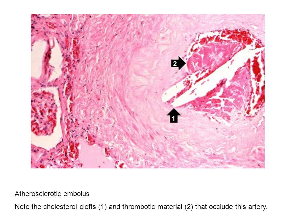 Atherosclerotic embolus