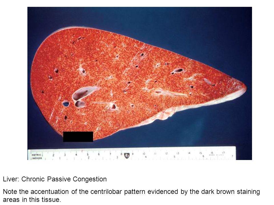 Liver: Chronic Passive Congestion