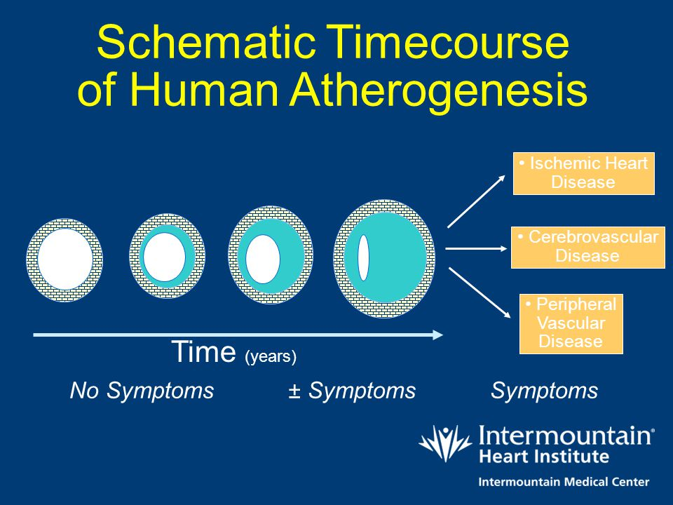 Schematic Timecourse of Human Atherogenesis