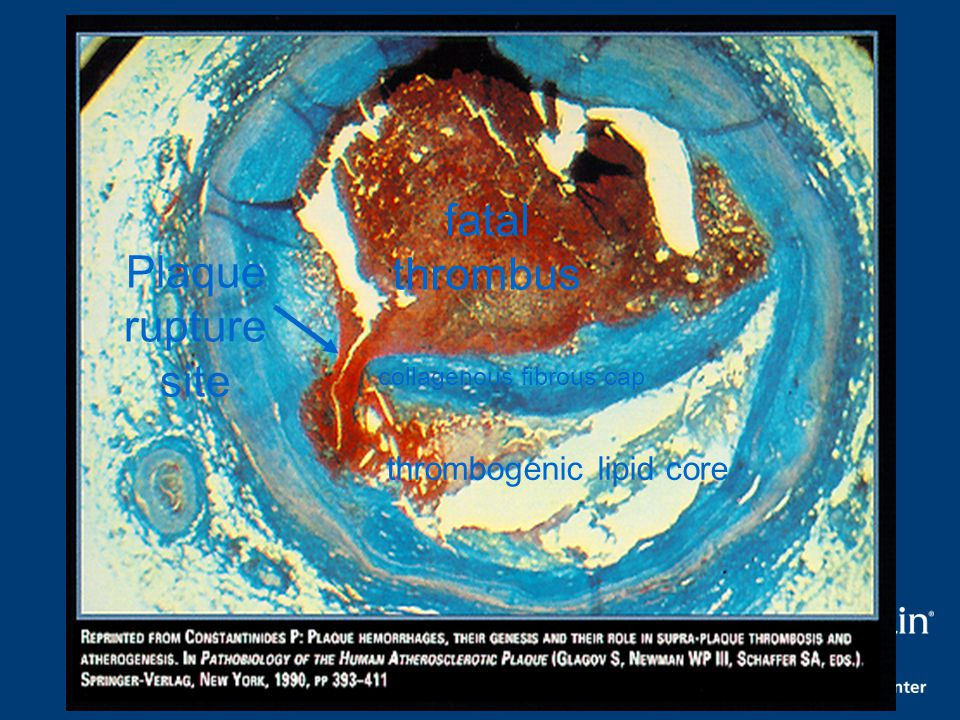 fatal thrombus Plaque rupture site thrombogenic lipid core